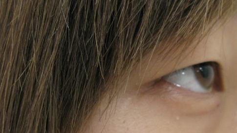 超美 切开双眼皮的 后恢复